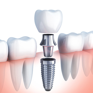 dental implant post with abutment and crown being placed in the jaw