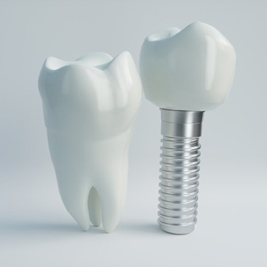 dental implant post with crown next to a natural tooth