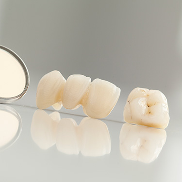 Dental crown and fixed bridge restorations