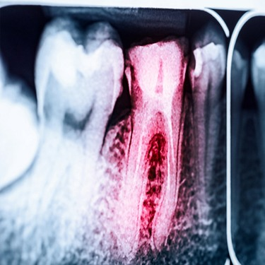 red tooth X-ray
