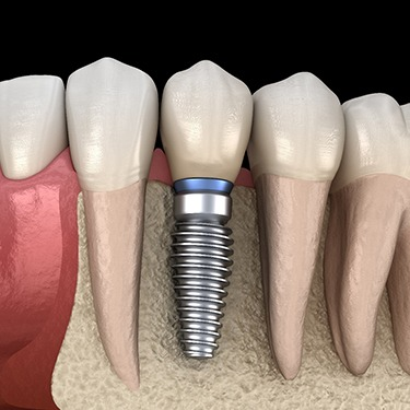 A digital image of a single tooth dental implant sitting between healthy, natural teeth on the bottom arch