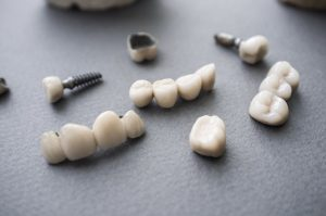 A collection of crowns, bridges, and implants.