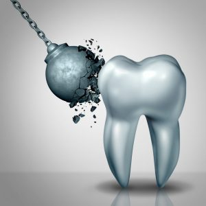 A wrecking ball cracking against a tooth.