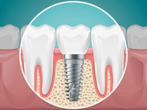 dental implant replacing missing bottom tooth