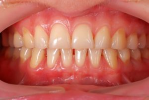 Healthy gums.