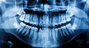 Dental digital x-ray image