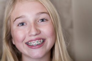 A smiling girl with traditional braces.