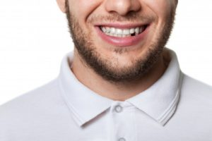 man missing tooth smile