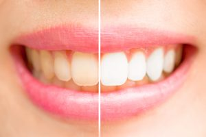 A woman's smile after teeth whitening.