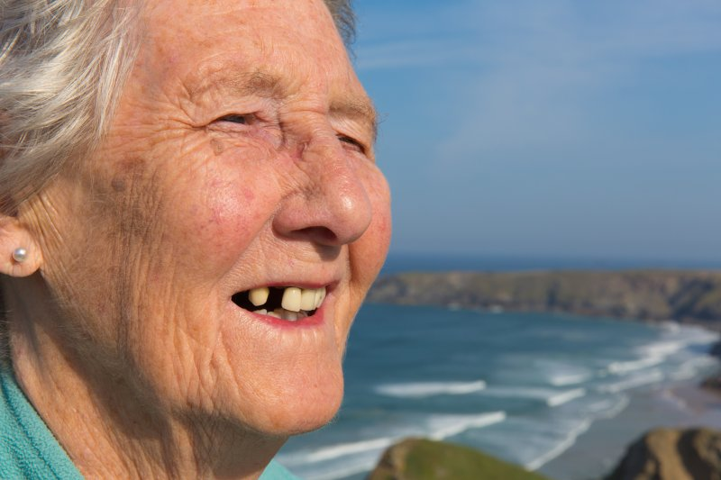An older woman with tooth loss.