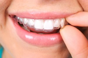 Have you considered getting clear braces in Waco?