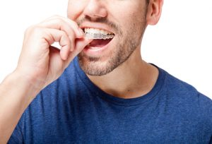 Why should I get ClearCorrect from my dentist in Waco, TX?