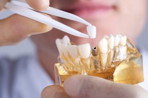 How can dental implants in Waco improve the quality of your life?