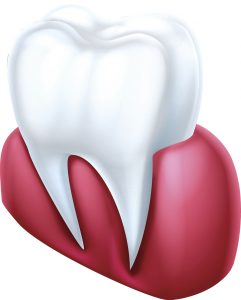 Your Waco dentist provides periodontal therapy.