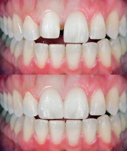 porcelain veneers in Waco