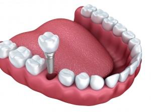 missing teeth in Waco