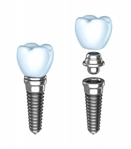 Yay for dental implants!