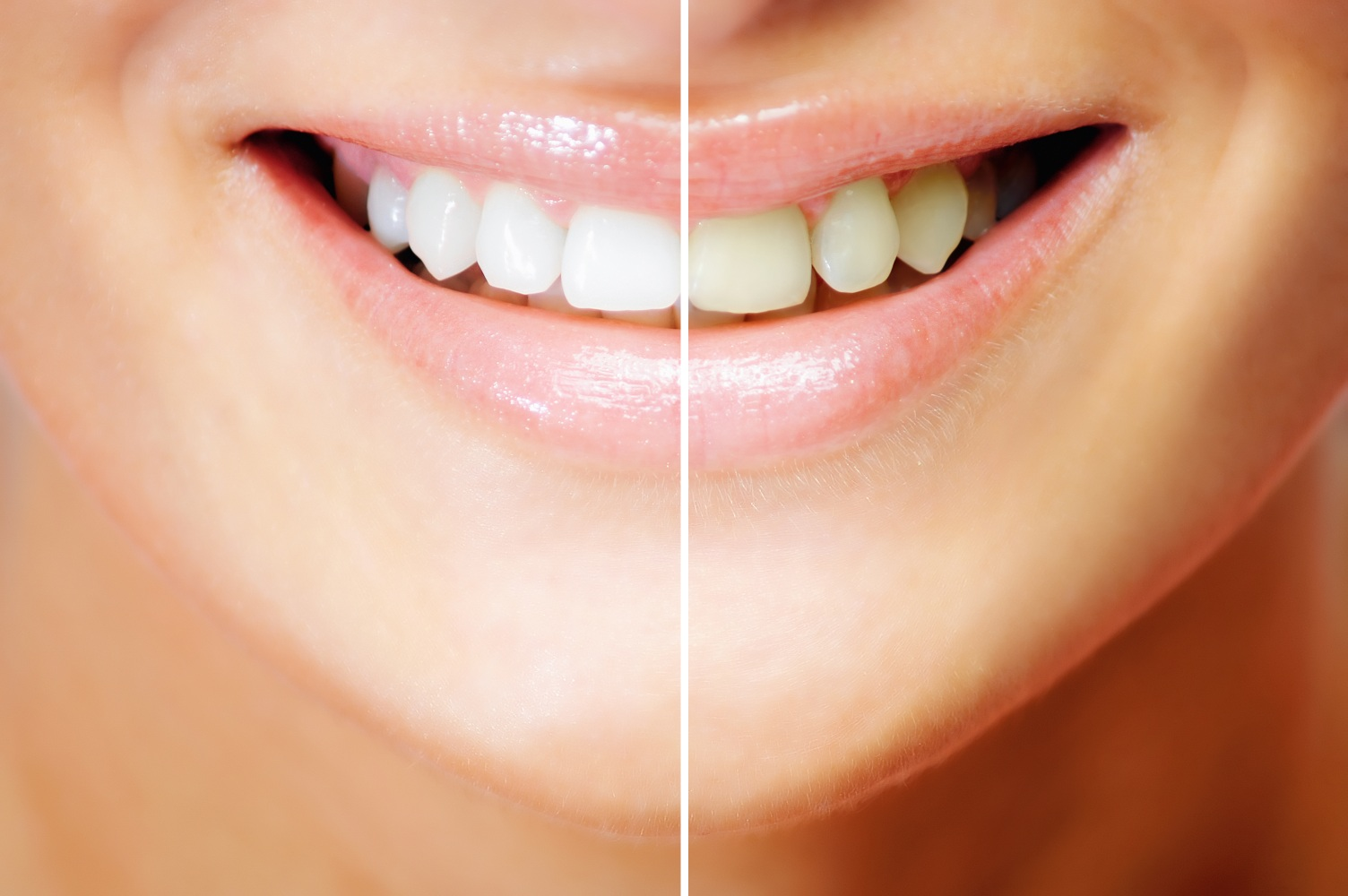 Do Whitening Toothpastes Really Work Premier Family Dental Blog